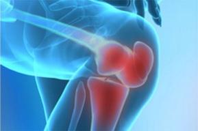 Изображение - Лечение суставов в крыму lechenie-sustavov-v-krymu